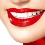 Как сделать улыбку белоснежной?